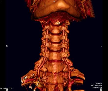 Vertebral artery | Radiology Reference Article | Radiopaedia.org