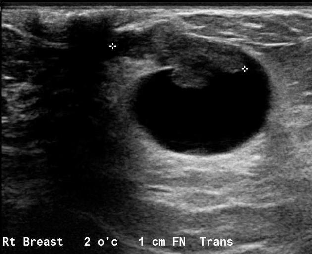 Ductal papilloma usg, Breast Imaging Companion - Ductal papilloma usg