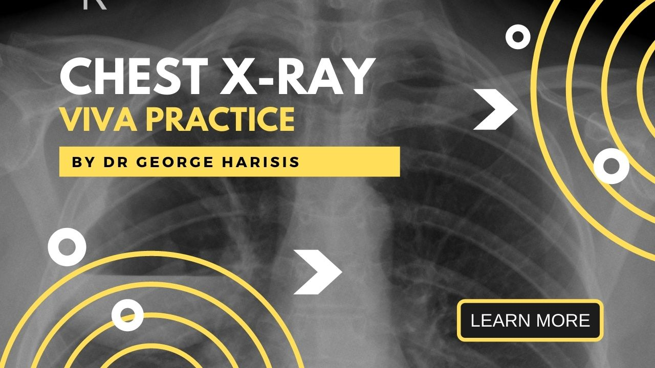 Chest X-ray Viva Learning Pathway